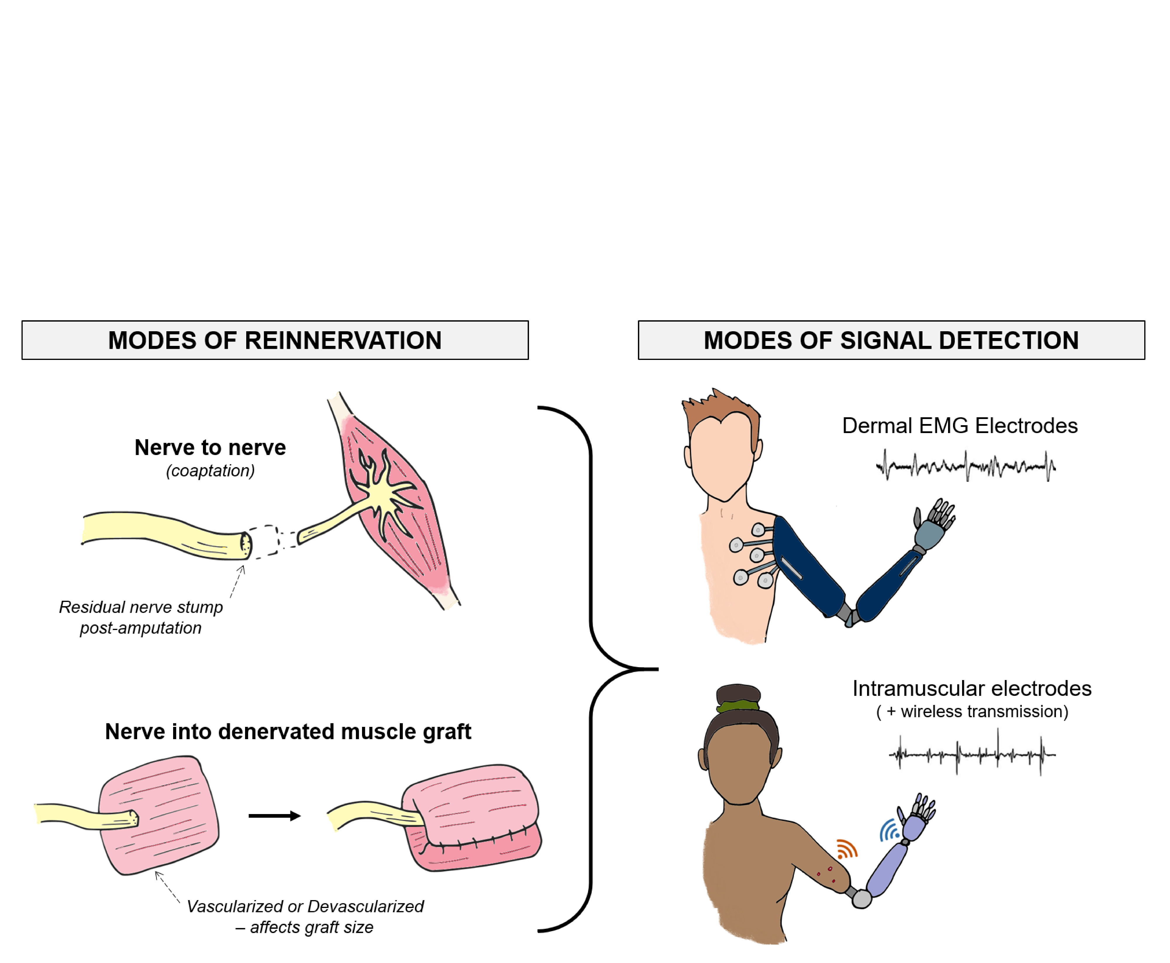 Muscle Reinnervation